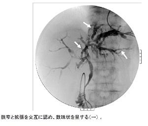 炎 硬化 原発 胆管 性 性