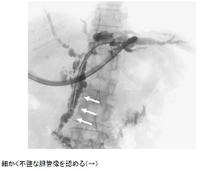 硬化 胆管 炎 性 原発 性 自己免疫性肝炎、原発性胆汁性胆管炎、原発性硬化性胆管炎の違い 東京都内有数の肝臓内科で12年間働く医師がお届けする肝臓病講座